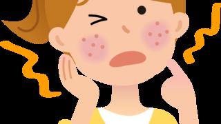 象肌に必要な保湿とは?アトピーになる原因と改善策